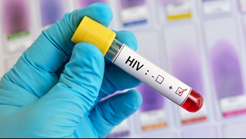 First new HIV strain in 19 years discovered