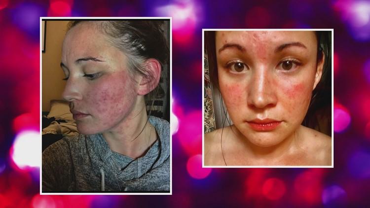 Amanda Moore Butterfly Rash Lupus
