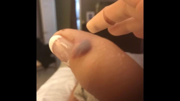 Swollen thumb