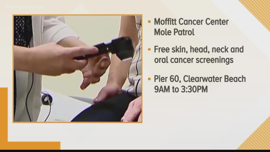 'Mole Patrol' offers free cancer screenings Saturday at Pier 60