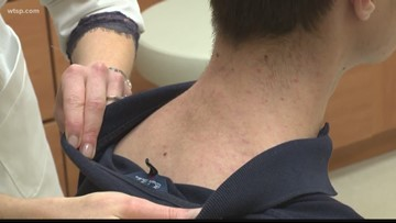 Melanoma Monday is coming: Get a free cancer screening