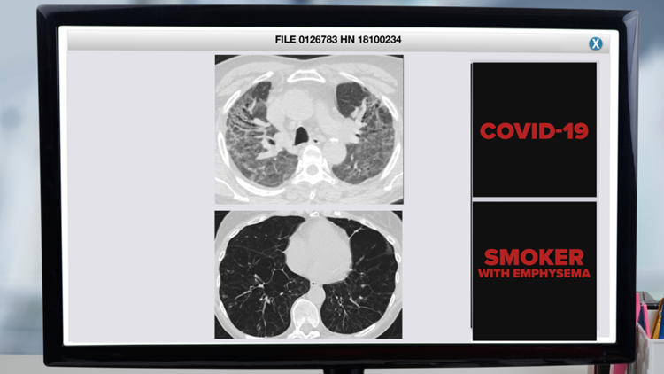 'We've never seen this before': Pulmonologists say lung scans show devastating impacts from COVID-19