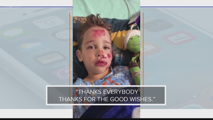 In the Know: Trick-or-treater thanks everyone for good wishes after getting hit by a truck